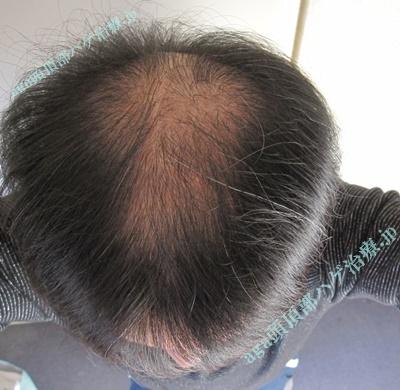 頭頂部薄毛写真