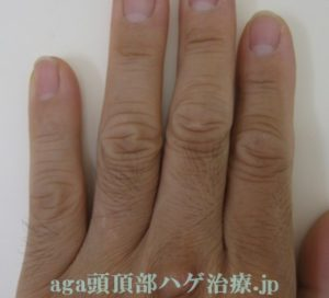 AGA治療副作用