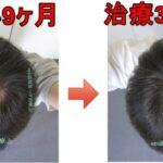 AGA治療3年10ヶ月の日記 頭頂部がちょっと薄くなった感じ