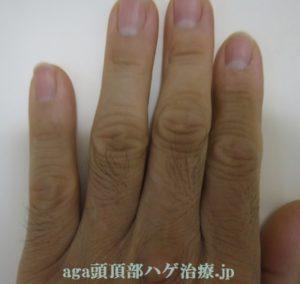 ミノキシジルの副作用で出た指毛