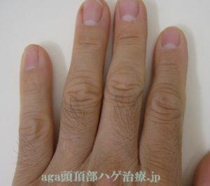 指の毛の写真