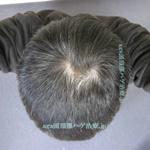 AGA治療3年の頭頂部写真