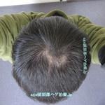 AGA治療3年1ヶ月の頭頂部写真