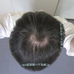 AGA治療3年10ヶ月の頭頂部写真