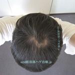 AGA治療3年11ヶ月の頭頂部写真