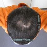 AGA治療開始3年2ヶ月の頭頂部写真