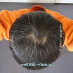 AGA治療3年3ヶ月の頭頂部写真