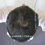 AGA治療3年4ヶ月の頭頂部写真
