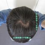 AGA治療3年5ヶ月の頭頂部写真