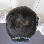 AGA治療3年6ヶ月の頭頂部写真