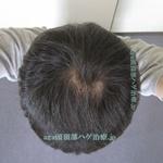 AGA治療3年7ヶ月の頭頂部写真