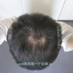 AGA治療3年8ヶ月の頭頂部写真