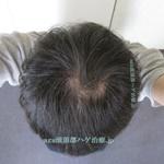 AGA治療3年9ヶ月の頭頂部写真