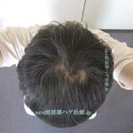 AGA治療4年の頭頂部写真