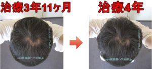 薄毛治療4年の比較写真