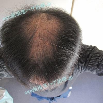 初期脱毛で薄くなった頭頂部