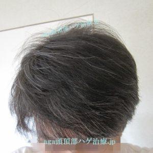 薄毛改善の写真