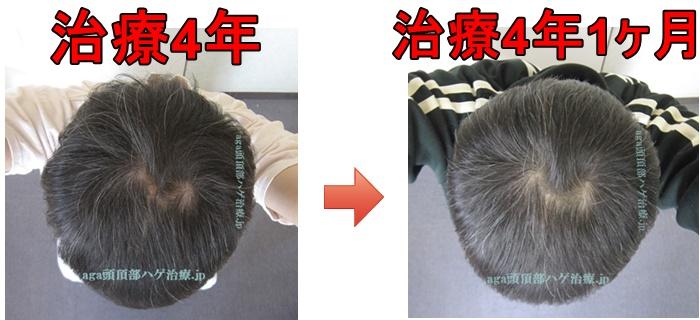 AGA治療薬4年1ヶ月の写真比較