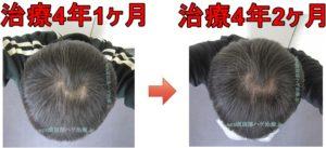 頭頂部の薄毛比較写真