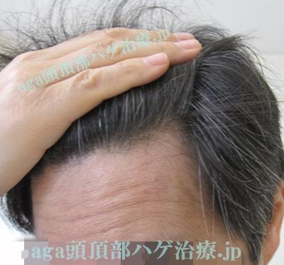 生え際の薄毛改善写真