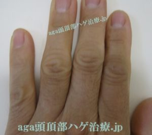 手の指の毛写真