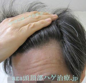生え際の薄毛改善画像