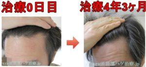 生え際の薄毛改善比較写真