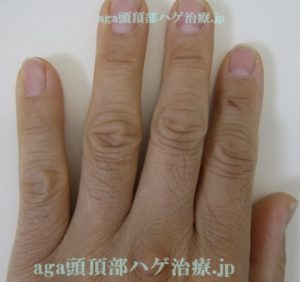 ミノタブ副作用の手