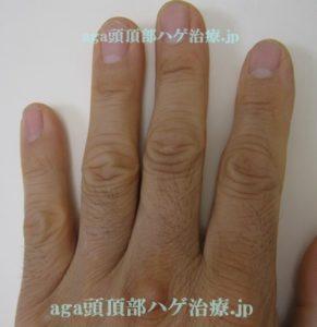 手の指の毛