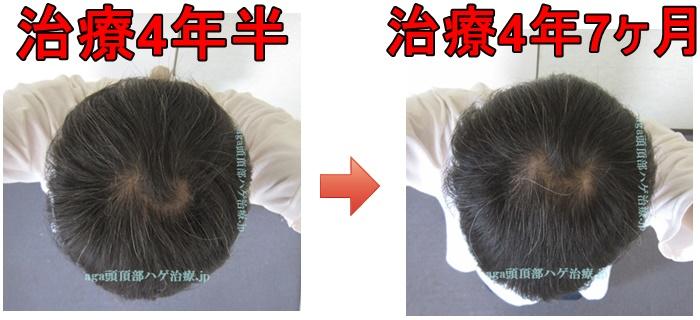 頭頂部の薄毛比較画像