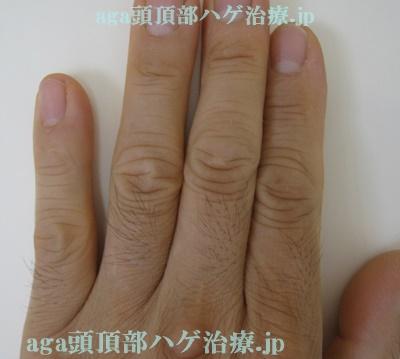 ミノタブの副作用で濃くなった指毛