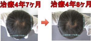 頭頂部の薄毛治療 写真比較