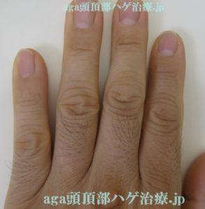 ミノタブの副作用写真