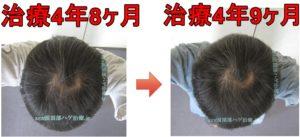 AGA治療頭頂部比較写真