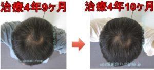 AGA治療比較写真