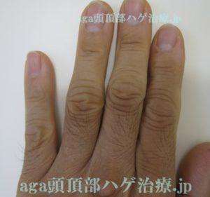 ミノタブの副作用で濃くなった指の毛