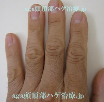 手の指の毛の画像