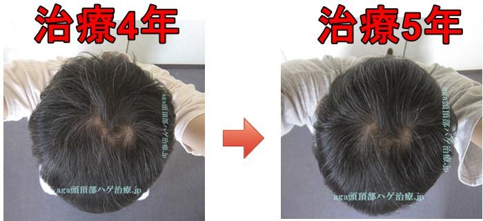 薄毛治療比較画像