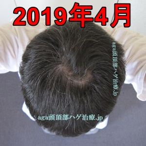 2019年4月の頭頂部