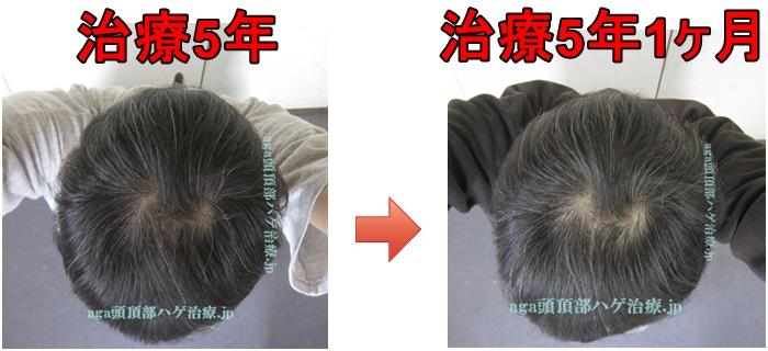 AGA治療5年1ヶ月の写真