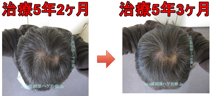 AGA治療2021年3月の比較画像
