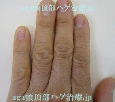ミノタブで濃くなった手の指の毛
