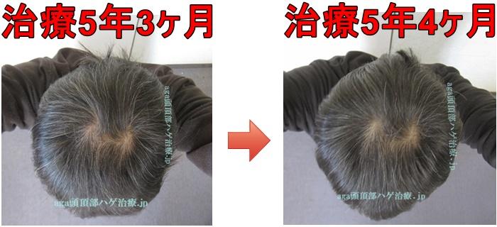 AGA治療5年4ヶ月の比較画像