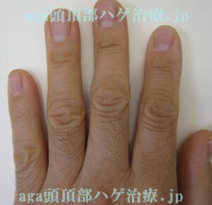 AGA治療薬で濃くなった指の毛