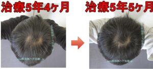 頭頂部の薄毛治療比較写真