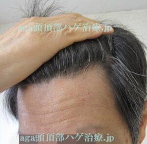 生え際の薄毛治療写真