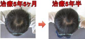 頭頂部ハゲの比較画像
