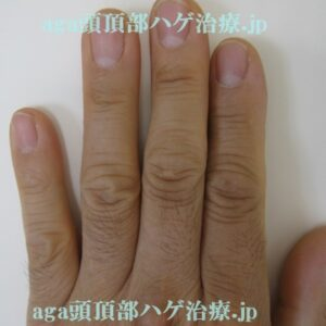 ミノタブで濃くなった指の毛の画像