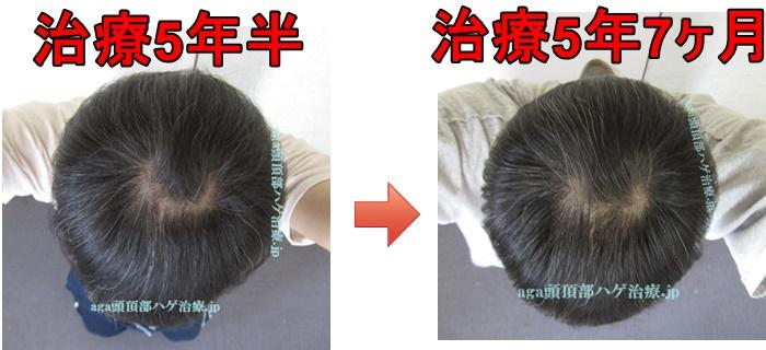 頭頂部の薄毛 比較写真
