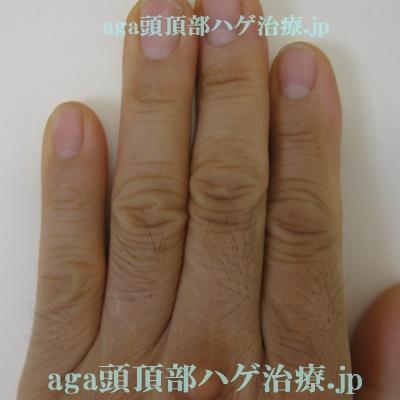 今月の手の指の毛